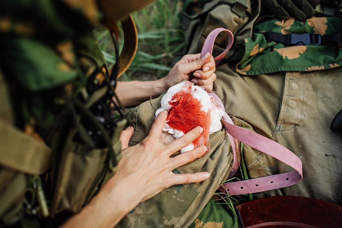 https://www.chassepassion.net/wp-content/uploads/2018/11/plaie-balle-chasse-soigner.jpg